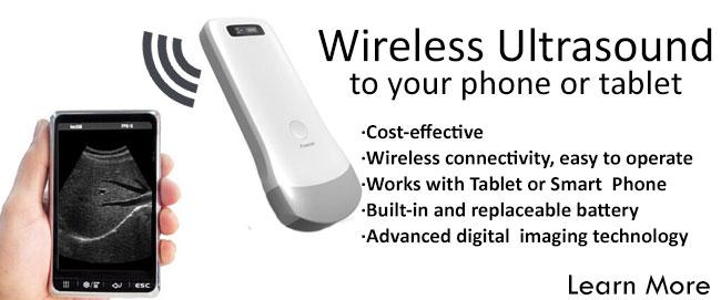 wireless ultrasound scanner